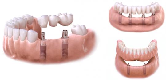 Implanty i protezy na implantach